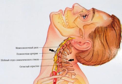 Лечение грыжи позвоночника в брянске