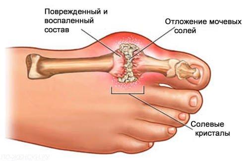artrit3