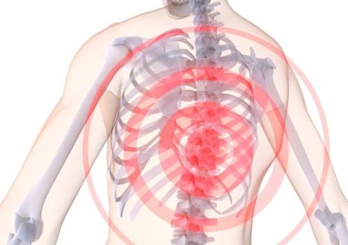 Хондроз грудной клетки