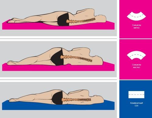 Лечение остеохондроза позвоночника пояснично-крестцового отдела