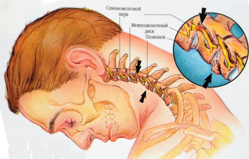 Лечение остеохондроза шейного и грудного отдела позвоночника лекарства