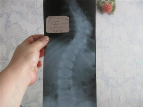 Корсеты при компрессионном переломе поясничного позвонка
