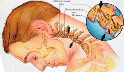 Болит шея сзади у ребенка 6 лет