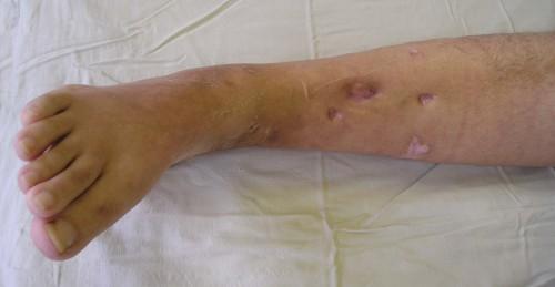 Это заболевание может быть вызвано различными факторами и нести серьезные последствия!