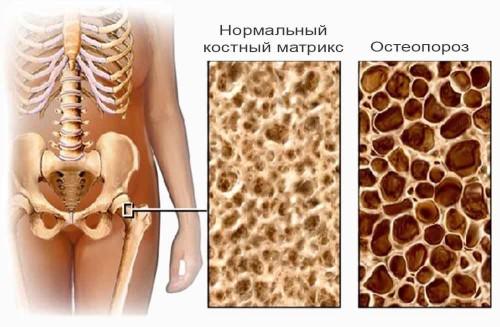 Болезнь причиняет необратимые изменения кости!