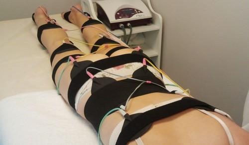 Процедура электрической стимуляции мышц