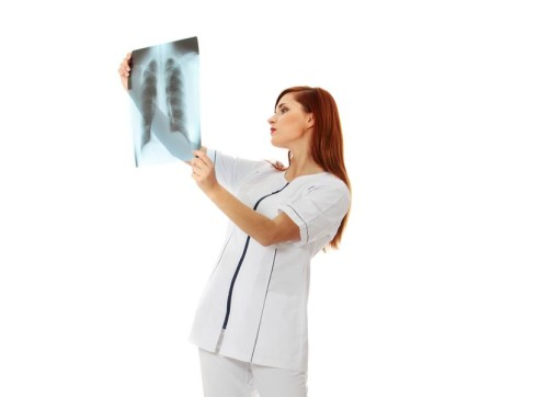 Спондилез грудного отдела